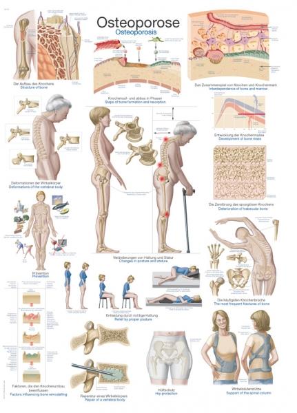"""Lehrtafel """"Osteoporose"""""""