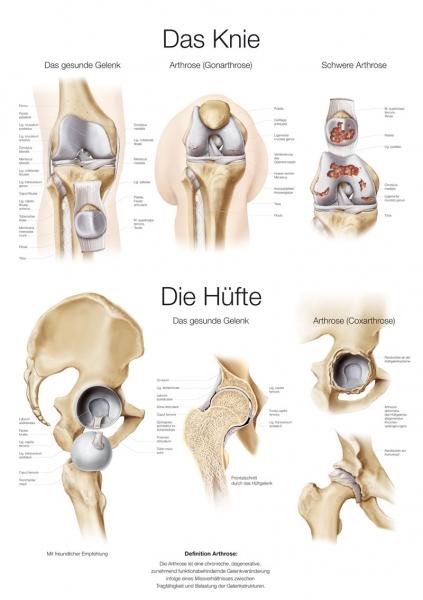 """Lehrtafel """"Das Knie / Die Hüfte"""""""